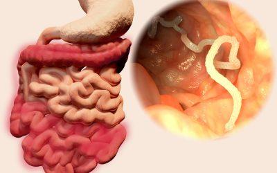 Constipation: et si des parasites intestinaux en étaient la cause?