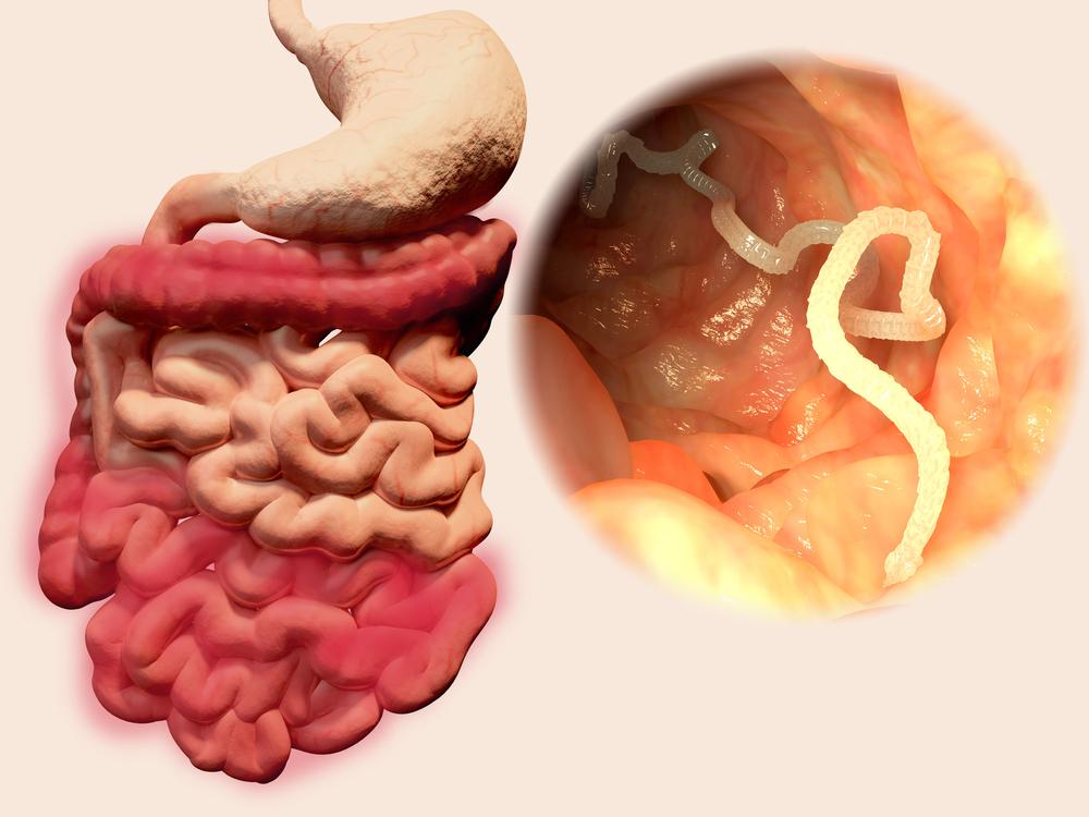 Constipation: et si des parasites intestinaux en étaient la ...